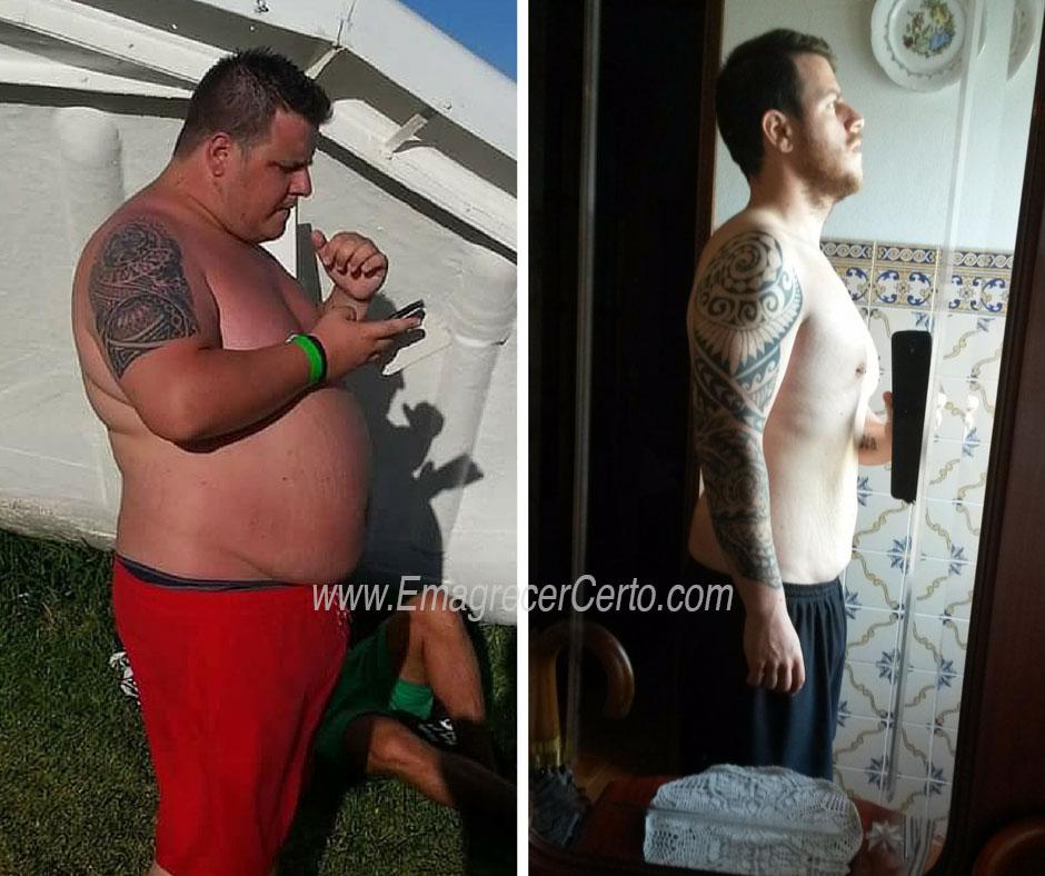 antes e depois de emagrecer